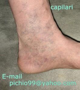 Ultrasonography di vene di gambe Lipetsk